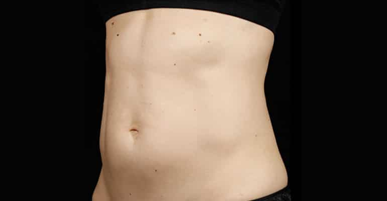 sculpsure_after_01