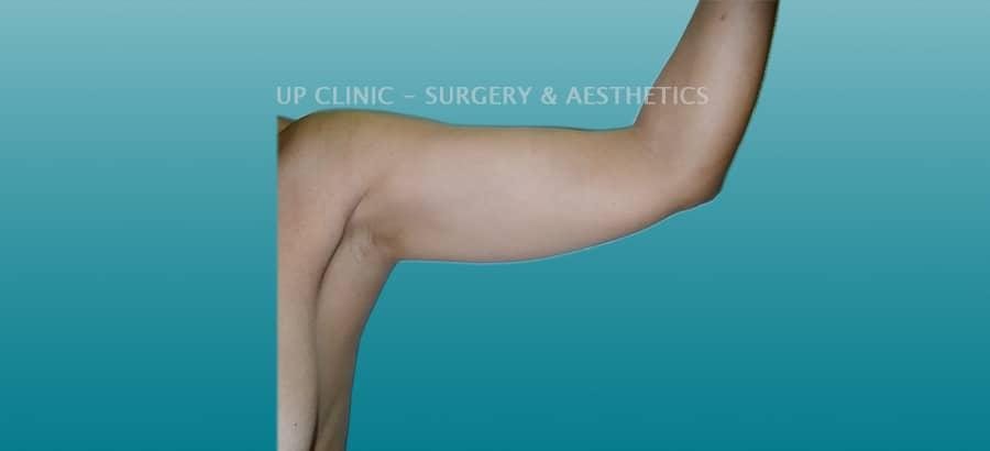 Lipo antes braços up clinic