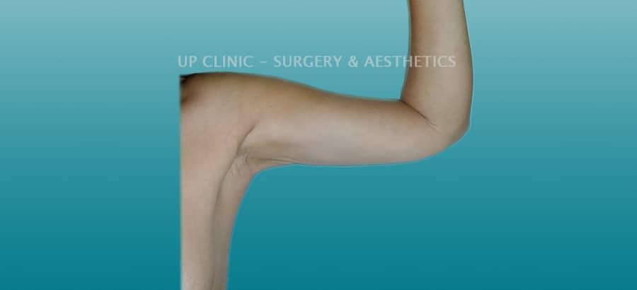 Lipo depois braços up clinic