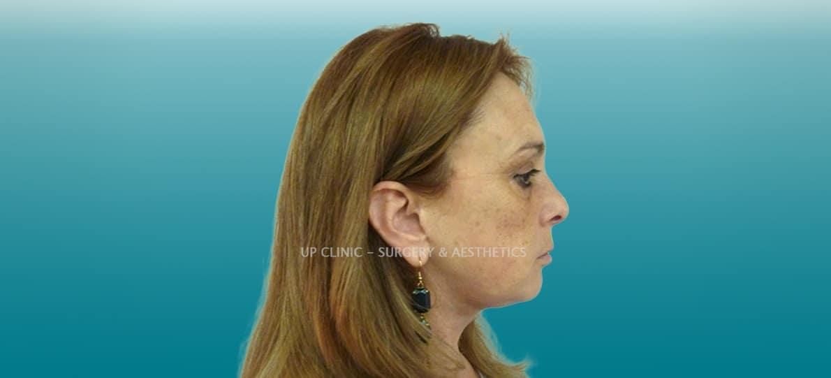 facelift lipoestaminal antes e depois up clinic
