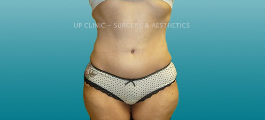 Abdominoplastia Up Clinic