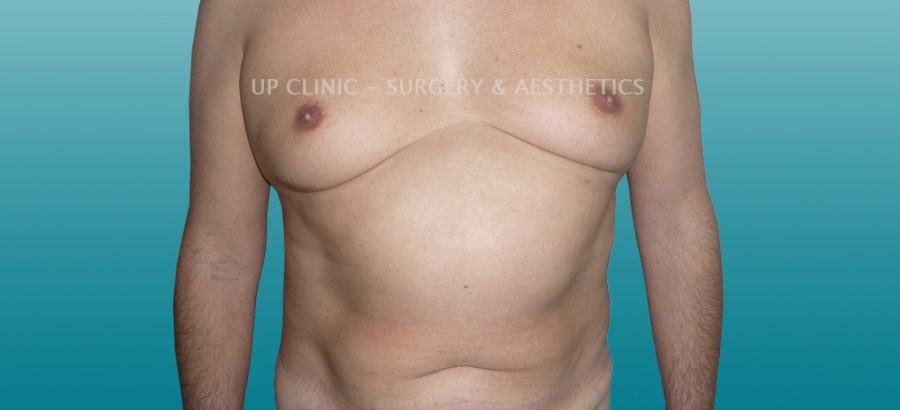 Ginecomastia Up Clinic antes