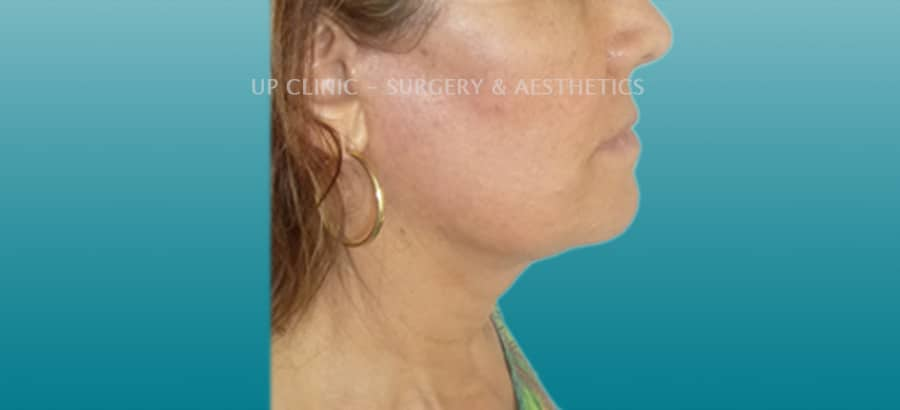 facelift Up Clinic