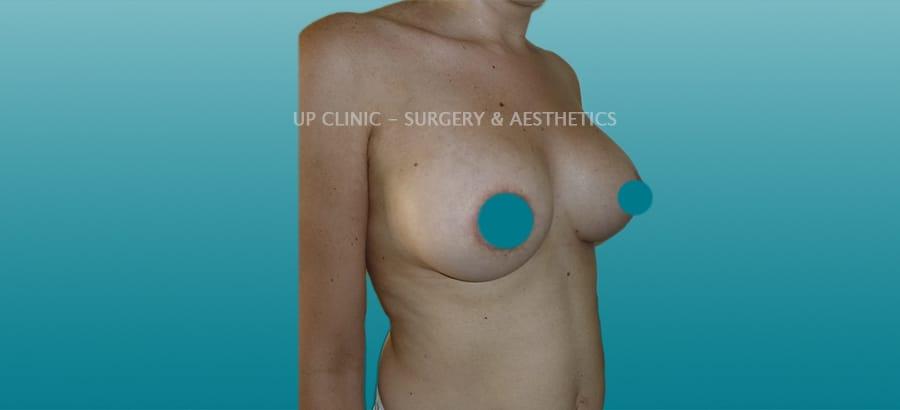 mastopexia de aumento Up Clinic antes e depois