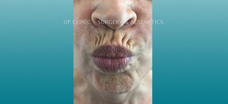 Lábios antes Up Clinic