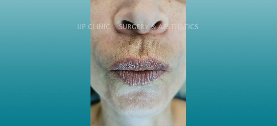 Lábios depois Up Clinc